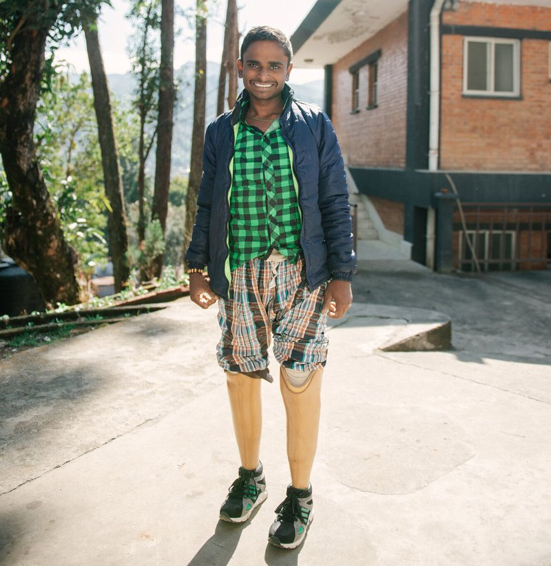 Santosh can walk again thanks to prosthetic legs provided by Anandaban Hospital.