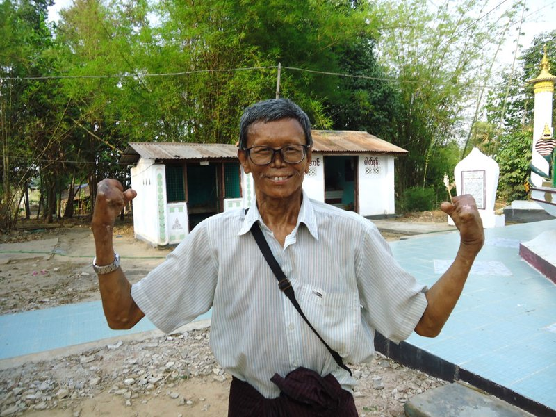 U Soe Win, now an advocate and campaigner for the rights of people affected by leprosy.